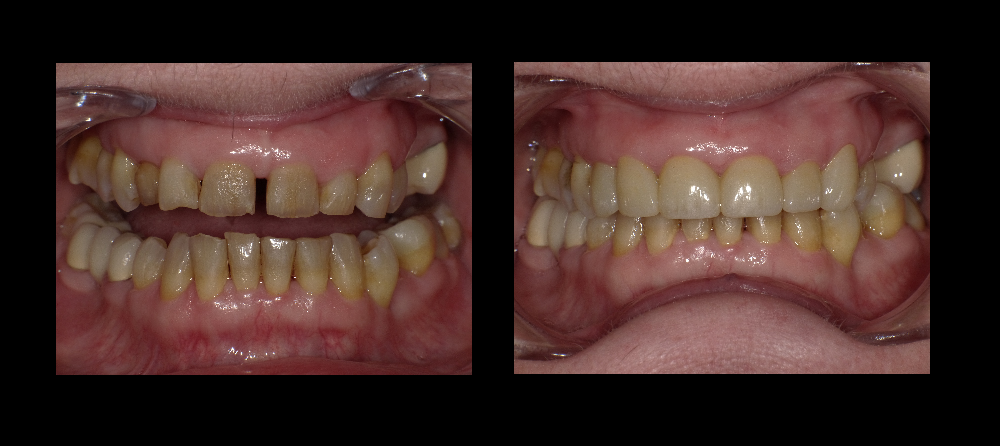 Smile Gallery General And Cosmetic Dentist